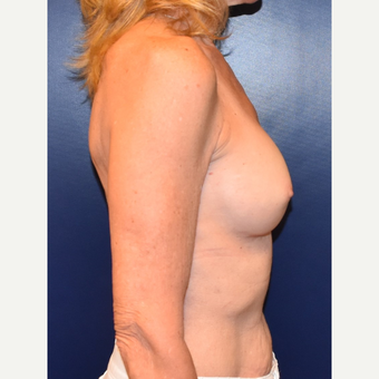 55-64 year old woman treated with Breast Implants after 3304932