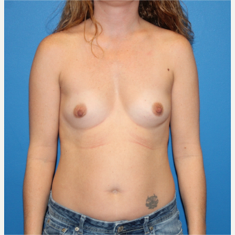 35-44 year old woman treated with Breast Augmentation before 3281384