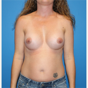 35-44 year old woman treated with Breast Augmentation after 3281384