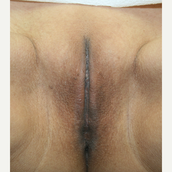 35-44 year old woman treated with Vaginal Rejuvenation after 2863779