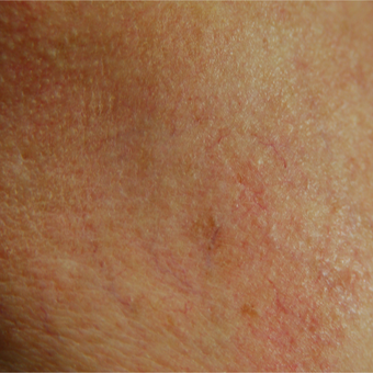55-64 year old woman treated with Vein Treatment before 3128042