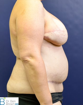 35-44 year old woman treated with Breast Reconstruction 3486734