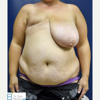 35-44 year old woman treated with Breast Reconstruction before 3486734
