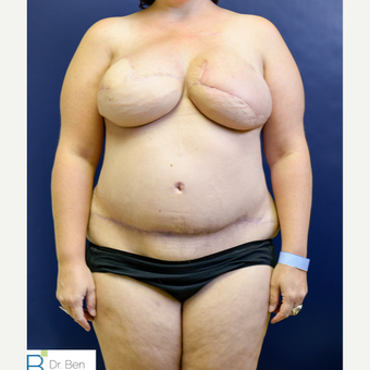 35-44 year old woman treated with Breast Reconstruction after 3486734