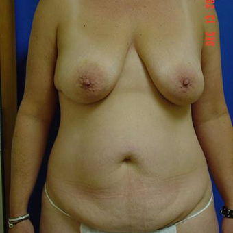 45-54 year old woman treated with Mommy Makeover before 3289280