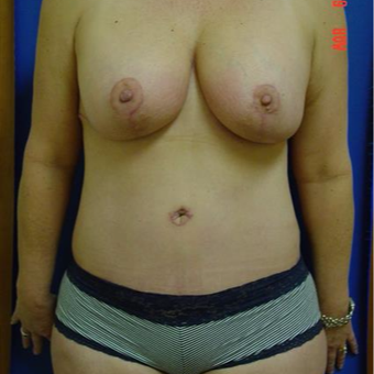45-54 year old woman treated with Mommy Makeover after 3289280