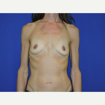 35-44 year old woman treated with Breast Augmentation before 3287864