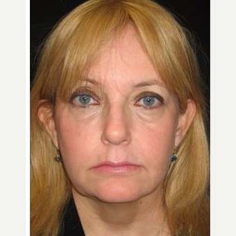 55-64 year old woman treated with Non Surgical Face Lift after 3181006