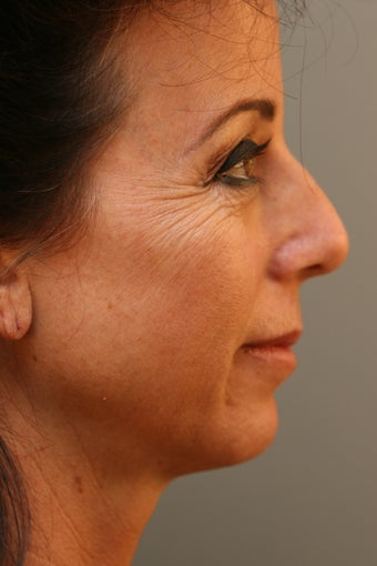 Female Chin Implant before 831900