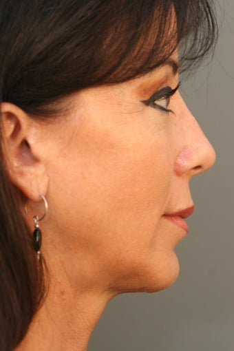 Female Chin Implant after 831900