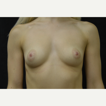 18-24 year old woman treated with Breast Augmentation before 3418241