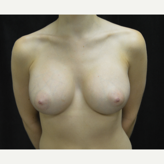 18-24 year old woman treated with Breast Augmentation after 3418241