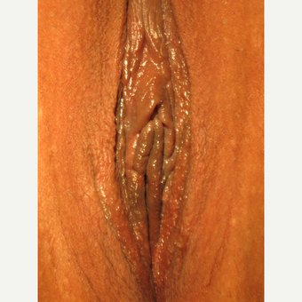 "31 y.o. with widened lax vagina and ""droopy"" enlarging labia. V- Y wedge to maintain labial ""flow."" after 3700512"