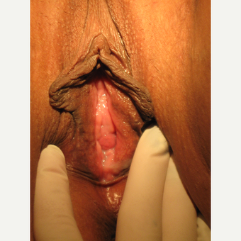 "31 y.o. with widened lax vagina and ""droopy"" enlarging labia. V- Y wedge to maintain labial ""flow."" before 3700512"