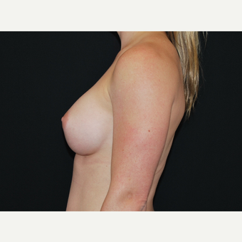 25-34 year old woman treated with Breast Implants after 3651193