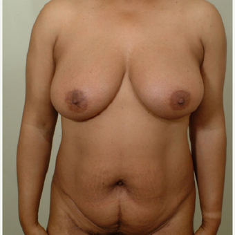 35-44 year old woman treated with Mommy Makeover before 3439947