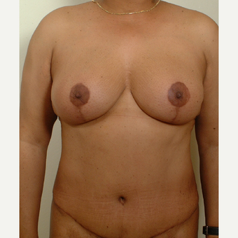 35-44 year old woman treated with Mommy Makeover after 3439947