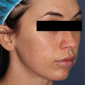 26 year old woman treated with IPL before 2073739