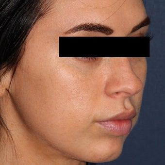 26 year old woman treated with IPL after 2073739