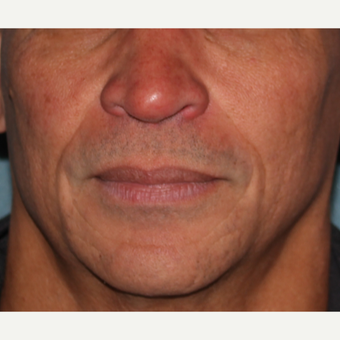 55-64 year old man treated with 2cc's Juvederm  to deep lines around mouth after 3185522