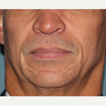 55-64 year old man treated with 2cc's Juvederm  to deep lines around mouth before 3185522