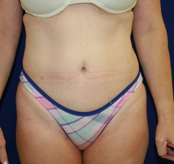47 Year Old Female with Smartlipo  after 1053841