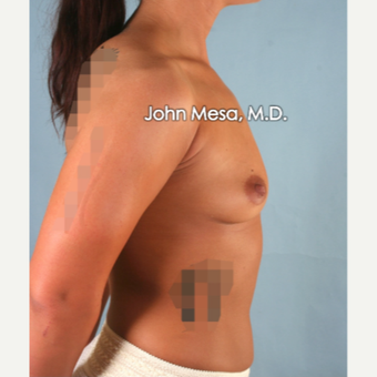 18-24 year old woman treated with Breast Augmentation before 3266890