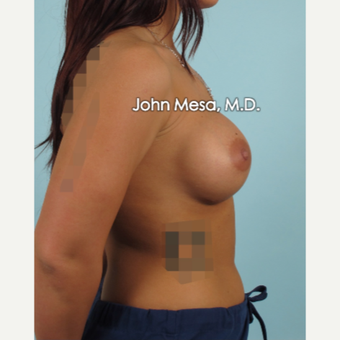 18-24 year old woman treated with Breast Augmentation after 3266890