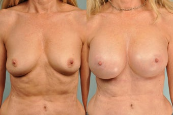 58 yr old nulliparous female 5 weeks following Natrelle style 410 highly cohesiv silicone gel breast implant above the muscle after 1029879