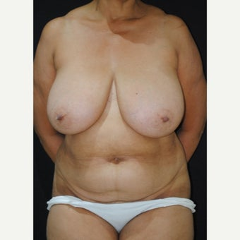 55-64 year old woman treated with Mommy Makeover before 1860248