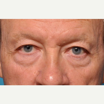 Transformation Eyelid Surgery before 3793645
