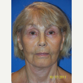 55-64 year old woman treated with Facelift after 3033648