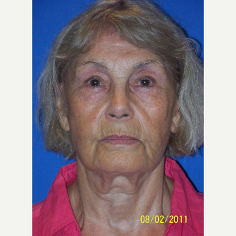 55-64 year old woman treated with Facelift before 3033648