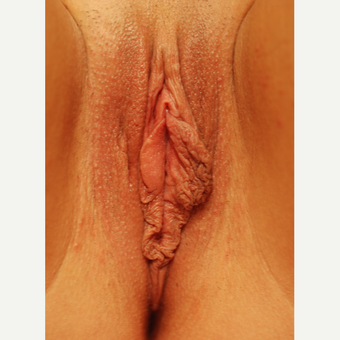 25-34 year old woman treated with Labiaplasty before 3659414