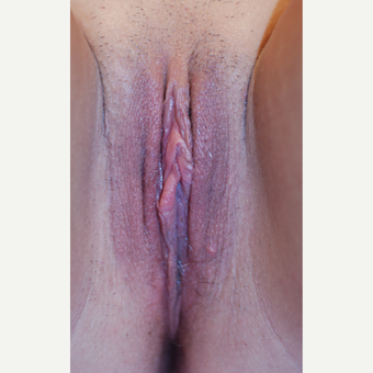 25-34 year old woman treated with Labiaplasty after 3659414