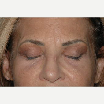 52 year old woman treated with Upper Eyelid Surgery - incisions after 3146640