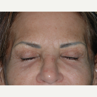 52 year old woman treated with Upper Eyelid Surgery - incisions before 3146640