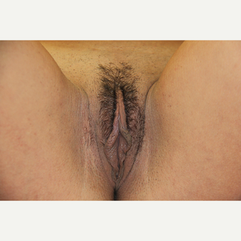 25-34 year old woman treated with Labiaplasty before 3224977