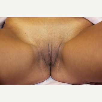 25-34 year old woman treated with Labiaplasty after 3224977