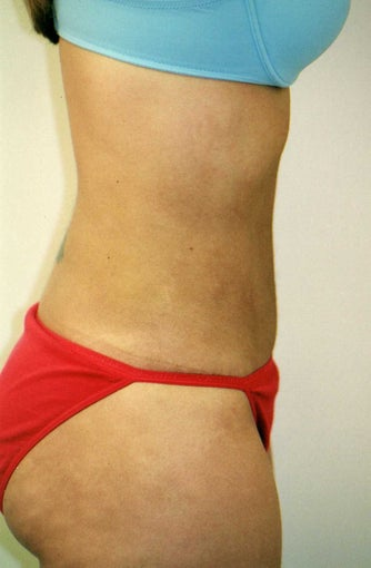 25-34 year old woman treated with Liposuction after 2955601