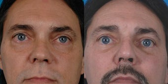 47-year-old man treated with Rhinoplasty. before 3287871