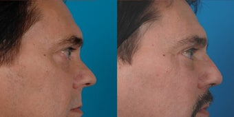47-year-old man treated with Rhinoplasty. after 3287871