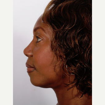Rhinoplasty after 3218386
