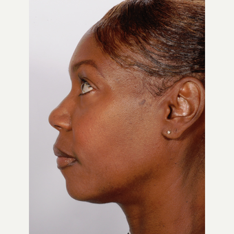 Rhinoplasty before 3218386