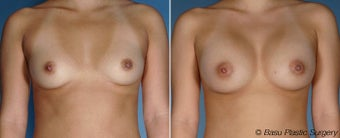 Breast Augmentation before 144986