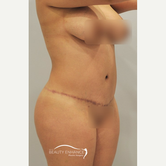 Extended Tummy Tuck - BBL after 3072354