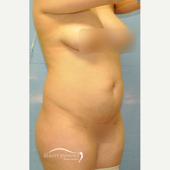 Extended Tummy Tuck - BBL before 3072354