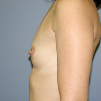 33  year old woman treated with Breast Implants before 3042495