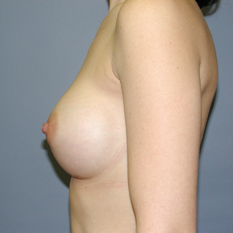 33  year old woman treated with Breast Implants after 3042495