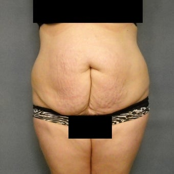 45-54 year old woman treated with Tummy Tuck before 1861932
